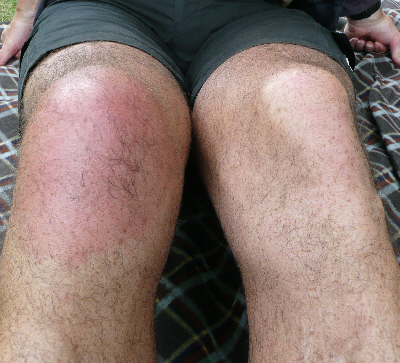 A picture of Keith's swollen knee